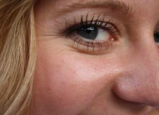 The Best Ways To Remove Eye Wrinkles